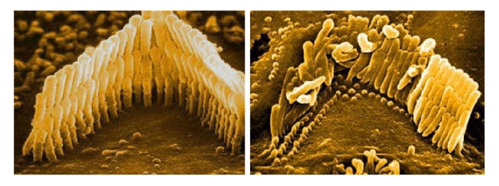 haircell damage in the ear