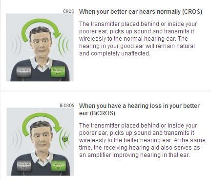 Single Sided Deafness Free Hearing Tests Digital