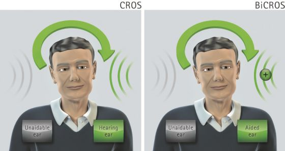 Cros hearing aid cost