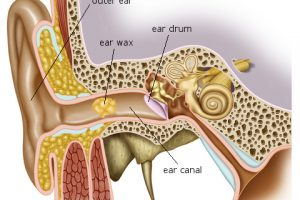 ear-wax-removal